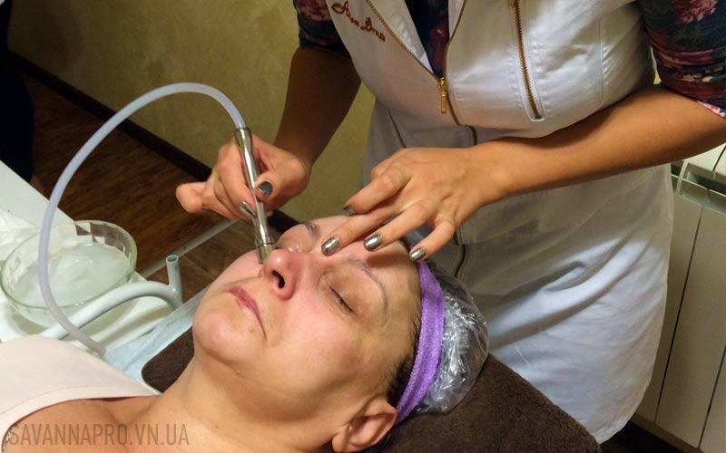 мікродермабразія обличчя
