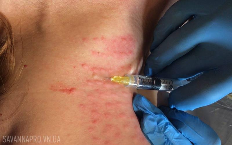 мезотерапія тіла, уколи