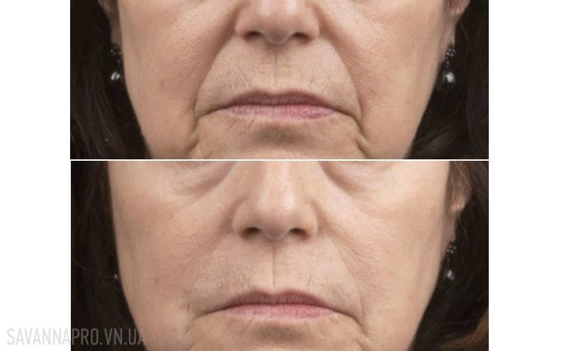 результат до/после коррекции носогубной морщины
